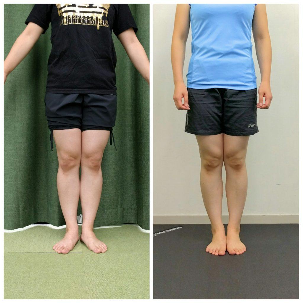 Before&After3週間のセルフケアで脚はどこまで細くなるのか?